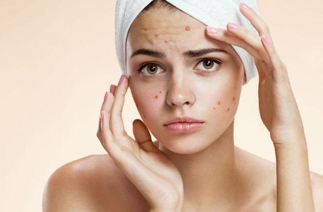 Reishi e Agaricus B. ottimi per pelle bella ed eliminare stabilmente l'acne