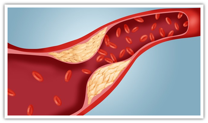 Shiitake, Cordyceps, Maitake e Reishi abbassano il Colesterolo in modo sano