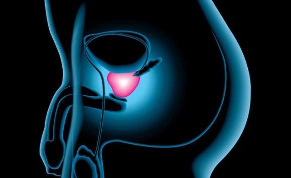 """Da autorevoli Scienziati USA """"il Maitake può aiutare a combattere il tumore della prostata e della vescica"""""""