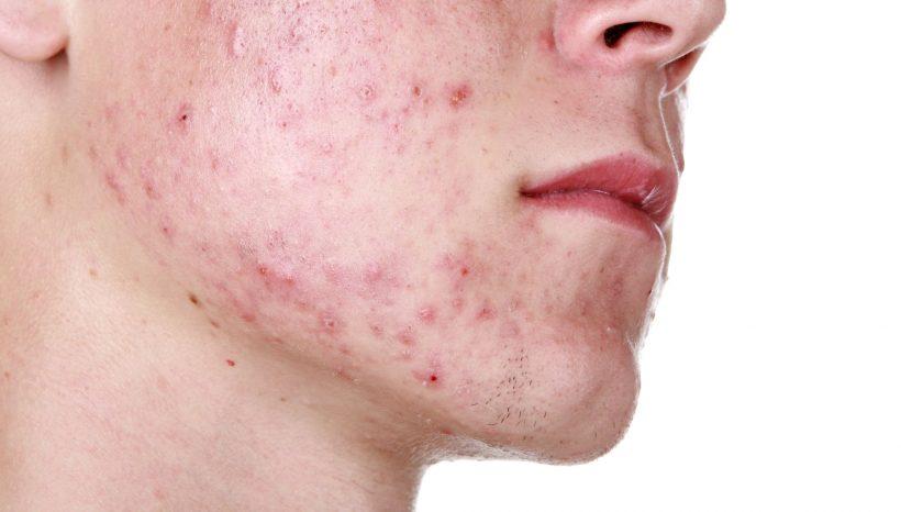 L'acne è quasi scomparsa con Agaricus e Reishi