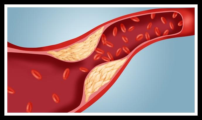 Via il colesterolo cattivo LDL da fegato, sangue e cuore, con il Pleurotus