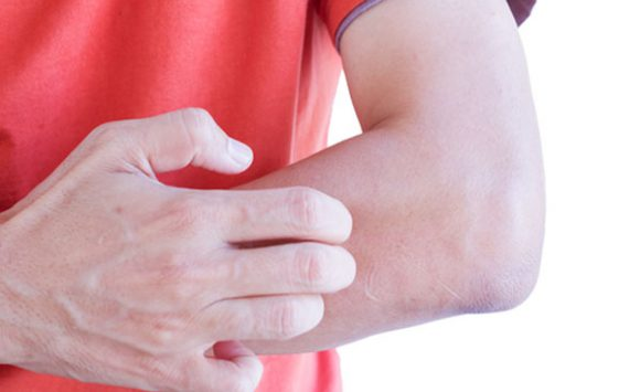 Allergia al nichel Reishi, Agaricus e Shiitake ti liberano per sempre