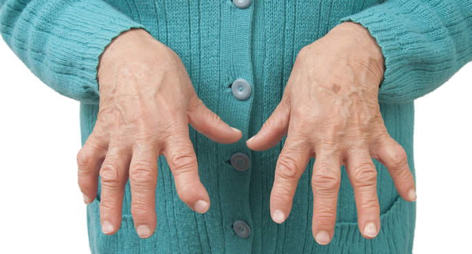 Artrite reumatoide: Reishi, Cordyceps e Shiitake lo dicono gli scienziati