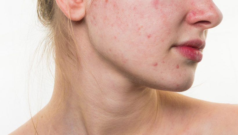 Cordyceps e reishi contrastano nelle ragazze: acne, caduta dei capelli e iperandrogenismo