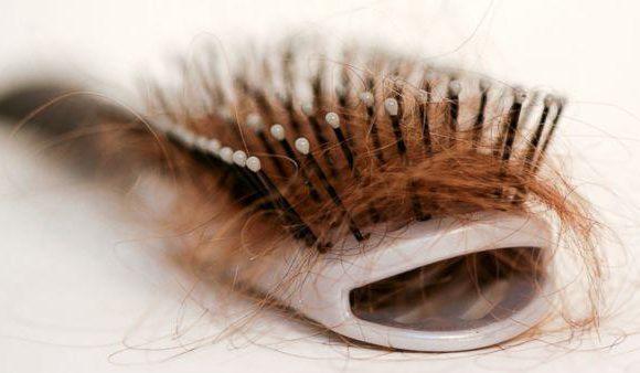 Caduta dei capelli nella donna | Blog del Dottor Ardigò