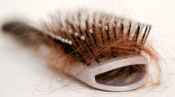 Caduta dei capelli nella donna