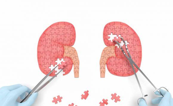 Cordyceps, Polyporus e Reishi migliorano l'insufficienza renale cronica