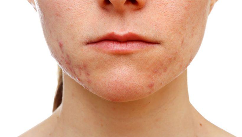 Per eliminare l'acne in modo definitivo