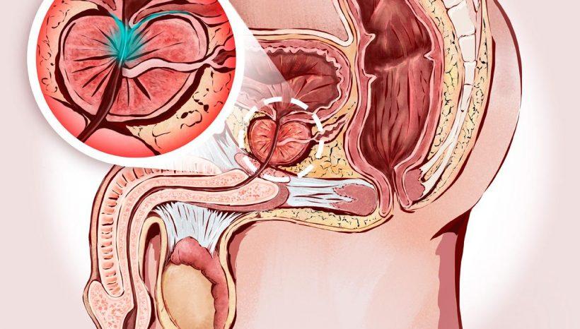 Prostata più in forma grazie alla Micoterapia